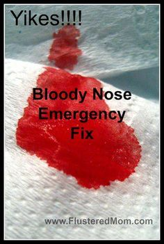 Frankincense essential oil stops bloody nose almost instantly.