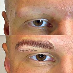 Ricostruzione totale arcata sopraccigliare  maschile in un caso di alopecia ...