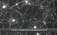 Primary Cortical Neuron transfection on DIV 5  (Data Courtesy of Dr Elena Di Daniel, Principal Scientist, Takeda Pharmaceuticals, Cambridge, UK)