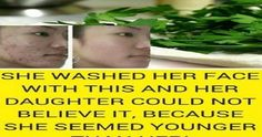 She Washed Her Face With This and Her Daughter Could Not Believe It, Because She Seemed Younger Than Her! Say Goodbye To Wrinkles, Dark Spots and Acne! Dark Spots Under Armpits, Castor Oil For Skin, Face Pictures, Younger Skin, Skin Care Remedies, Skin Care Tips, Skin Tips, Anti Aging, 3d Printing