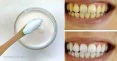 La pasta de dientes es imprescindible para una boca limpia y reluciente. ¡Mata a las bacterias que causan mal aliento, enfermedades de las encías y caries! Pero a cambio, obtendrás ... ¿químicos tóxicos? Lamentablemente, este es el caso de varias marcas comerciales de pasta de dientes. Por eso es una buena ida hacer una versión natural en su lugar. Cómo hacer pasta de dientes natural de menta Los ingredientes en esta pasta de dientes DIY pueden mantener sus dientes sanos y fuertes de muchas…