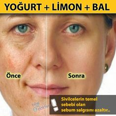 Have a Beautiful Skin with Face Mask!- Have a Beautiful Skin with Face Mask!- Yüz Maskesi İle Güzel Bir Cilde Sahip … Have a Beautiful Skin with Face Mask! Age Spot Remedies, Home Remedies, Natural Remedies, Beauty Secrets, Beauty Hacks, Diy Beauté, Health And Beauty Tips, Health Tips, Beauty Recipe