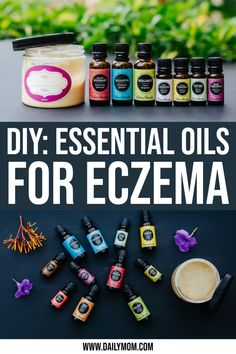 All things DIY 7 Effective Essential Oils for Eczema and DIY Eczema Cream 4 Daily Mom Parents Portal Essential Oils For Migraines, Essential Oils For Hair, Essential Oils Eczema, Doterra Oils, Whipped Coconut Oil, Cream For Dry Skin, Peeling, Body Creams, Essential Oils