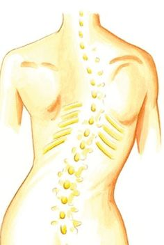scoliosis that affects the ederly Yoga For Scoliosis, Scoliosis Surgery, Scoliosis Exercises, Spine Surgery, Spinal Canal, Spinal Nerve, Bone Density, Muscle Tension, Art Portfolio