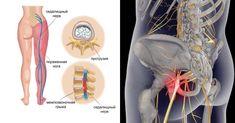 Эти методы работают! Боли уходят уже поле первого занятия! Смотрите ВИДЕО! Седалищный нерв является одним из крупнейших нервов в организме. Он начинается в нижней части позвоночника и проходит...