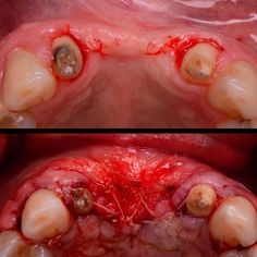Before and after the surgery - looks like we have added some width to that ridge #dentistry #periodontics #parodontologia #periodoncia #implantdentistry #aeshetics #aestheticdentistry #smiledesign #biology #bone #biomaterials #3dprinting #smile #biotechnology #surgery #oralsurgery #architecture #building #reconstruction #dentaldesign #smilespecialist  #3dsculpting #3dscanner #3dprinting #3d #3drendering #3drender #3ddentalscanning #3dsurgery by dr.cicero