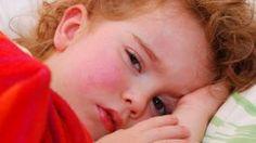 La fièvre scarlatine est de retour et chaque parent doit faire attention à ces signes avant-coureurs ! Vicks Vaporub, Infection Des Sinus, Fitness Models, Fitness Motivation, Parents, Listerine, Photoshop, Afin, Stevia