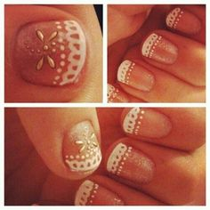 Lace nails
