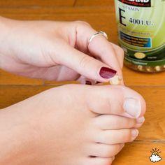 Remedy #2: Vitamin E Or Vitamin A