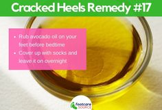 30 Amazing Home Remedies for Dry Cracked Feet: Avocado Oil for Cracked Heels Cracked Feet Remedies, Foot Remedies, Heel Fissures, Dry Cracked Heels, Dry Skincare, Soft Feet, Natural Moisturizer, Avocado Oil, Tea Tree Oil