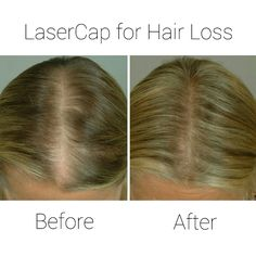 Hair loss solution Capillus LaserCap now available at Dr. Robert Jones Toronto Hair Transplant Clinic www.DrRobertJones.com Hair Facts, Hair Transplant, Hair Loss, Clinic, Toronto, Photos, Beauty, Beleza, Pictures