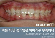 아동 10명 중 1명은 치아개수 부족하다