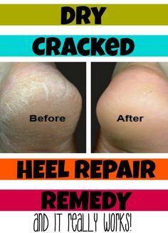 cracked heel repair