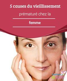 5 causes du #vieillissement prématuré chez la #femme Le vieillissement est quelque chose de #naturel, que nous devons affronter avec optimisme et #tranquillité d'esprit.