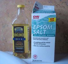 Homemade natural treatment for eczema.