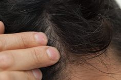 Solutions for an Extremely Itchy, Flaky Scalp
