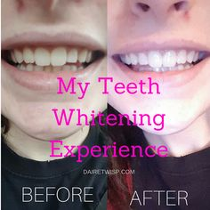 My Teeth Whitening Experience
