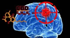 William Stash Jones Oregon Cannabis Connection  A new study in the United Kingdom is looking at the compound CBD (Cannabidiol) specifically as a treatment for brain tumors in children. The study has been prompted by a rush of desperate parents that have been found buying the cannabinoid online and administering it themselves in an attempt to cure... #braintumors #cbd #cbdtreatmentforbraintumors