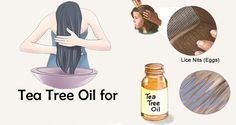 head lice, Best and also fastest All-natural treatments to remove Head lice effectively and means to prevent it Tea Tree Oil Lice, How To Get Rid, How To Remove, Lice Nits, Hair Lice, Lice Removal, Hair Vitamins, Oily Hair, Strong Hair
