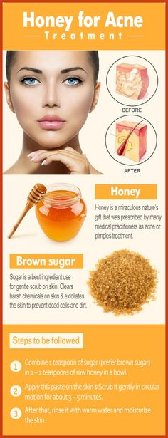 Homemade Acne Remedies - Natural Ways to Cure Acne - Discover 3 Things to Do Every Day to Cure Your Acne Naturally at Home * Want to know more, click on the image. #bbloguer