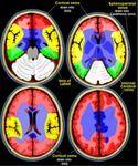Fig. 1: Territorios Venosos Cerebrales References: Radiology Assistant