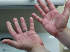 """Chemotherapy-induced acral erythema (also known as """"palmar-plantar erythrodysesthesia"""" or """"hand-foot syndrome"""") is reddening, swelling, numbness and desquamation on palms and soles that can occur after chemotherapy in patients with cancer. Dry Skin Remedies, Eczema Remedies, Natural Remedies, Fitness Workouts, Dry Skin On Feet, Varicose Vein Removal, Skin Tips, Skin Makeup, Garlic"""