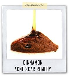Cinnamon and honey acne remedy