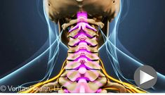 Cervical stenosis with myelopathy is a degenerative condition that pinches the spinal cord. Symptoms of cervical spinal stenosis vary and most often occur in elderly patients.