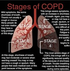There are four stages of COPD, ranging progressively from mild to very severe. Each stage brings with it different symptoms, and performance on pulmonary function tests (PFTs) typically decreases as the stages progress. Copd Stages, Respiratory Therapy, Respiratory System, Natural Asthma Remedies, Lung Cleanse, Chest Congestion, Paramedics, Cardiology, Biology