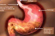 Cura para la Gastritis - Cura para la Gastritis - Cura para la Gastritis - Basta de Gastritis - Basta de Gastritis - Dieta adequada para pessoas com refluxo - Basta de seguir sufriendo, aqui te digo como eliminar de forma 100% natural tu gastritis, resultados en 21 dias o menos - Vas a descubrir el método más efectivo y hasta ahora guardado CELOSAMENTE por los gastroenterólogos más prestigiosos del mundo Vas a descubrir el método más efectivo y hasta ahora guardado CELOSAMENTE por los ...
