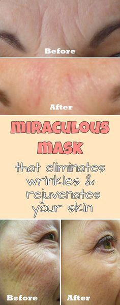 12 Smart Life Changing Beauty Care Hacks Every Girl Should Know Techniques every girl Tried And Tested Skin Ca. Life hacks every girl should know - Beauty Diy Beauty Care, Beauty Skin, Beauty Secrets, Beauty Hacks, Hacks Every Girl Should Know, Prevent Wrinkles, Wrinkle Remover, Health And Beauty Tips, Skin Care