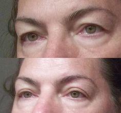Az öregedés először a szemeken látszik. A lelógó felső szemhéj öregebbnek mutathatja az arcot valós koránál, nagyon nehéz sminkelni és mindig fáradtság benyomását kelti. Nem kell rögtön sebé…