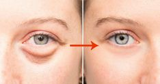 Allergy Eyes, Dark Circles Under Eyes, Healthy Eyes, Eyes Problems, Puffy Eyes, Stay Young, Wash Your Face, Fett, Skin Care Tips