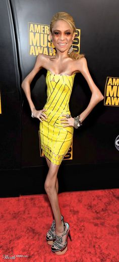 Please tell me this is photo shopped!  Anorexia is not beautiful!