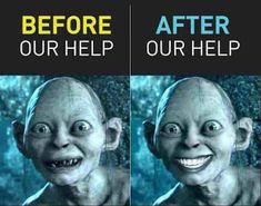 Visit dentist Ottawa, ON at Villanova Dental Studio for family and cosmetic dentistry. Offering dental implants, porcelain veneers, TMJ therapy and more. Dental Jokes, Dentist Humor, Dental Art, Dental Humour, Surgery Humor, Dental Surgery, Dental Health, Oral Health, Dental Lab Technician