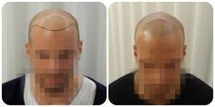 Looking for Scalp Micropigmentation Clinics in Belgium?