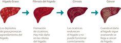 Prevention of liver cancer - http://howtocureyou.ml/2017/07/17/prevention-of-liver-cancer/