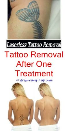 15 Best Tattoo Removal Cost images | Latest tattoos, Tattoo removal ...