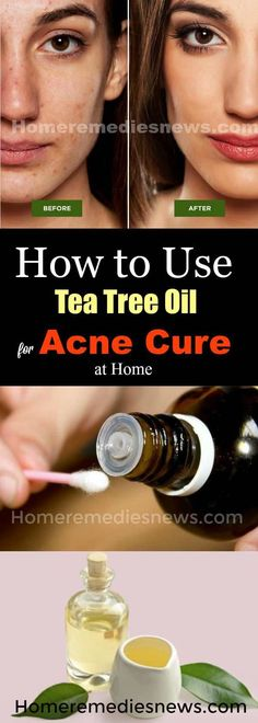 How to Use Tree Tea Oil for Acne Cure at Home- Acne is a skin disorder that comes about when excessive production of sebum clogs skin pores. According to Science Daily acne is an inflammatory disease of the skin caused by changes in the pilosebaceous units (1). It affects both men and women alike. Acne is one skin disease that affects the beauty of its victims negatively. It is one disorder nobody wishes for.
