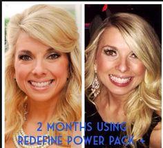 Jennifer Coxen after 2 months on the Redefine Power Pack w/ eyecream