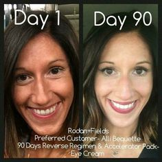 REVERSE can help with sun damage and age spots! Contact me  Mdougher@myrandf.com
