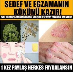 Tips And Tricks, Creme, Le Psoriasis, Cellulite, Health Advice, Skin Problems, Deodorant, Detox, Knowledge