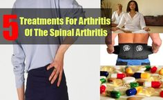 Spinal Arthritis causes great pain in your back area and can lead to severe form of complications especially for people who are above 40 years. ...