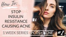 PCOS: INSULIN RESISTANCE + ACNE | Intermittent fasting? Diet + Best Reme...