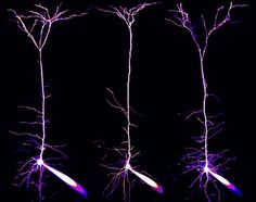Pyramidal neurons and their dendrites visualized in the visual cortex of a mouse brain  Alexandre William Moreau, University College London, Institute of Neurology, London, UK