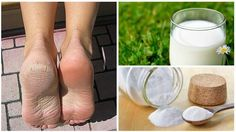 Luce unos pies suaves y bonitos combinando dos ingredientes naturales que de seguro están en tu despensa. ¡Pruébalo!