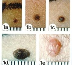 Is It a Mole or Skin Cancer?: Pictures of Moles and Melanoma Skin Cancer - Example of a Normal Mole
