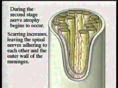 Mechanism of the making of Arachnoiditis-C.Burton