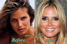 Heidi Klum should have kept her natural nose- it's too pinched now