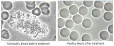 Unhealthy and healthy blood cells by Errol Denton